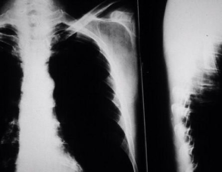 What Causes Mesothelioma?