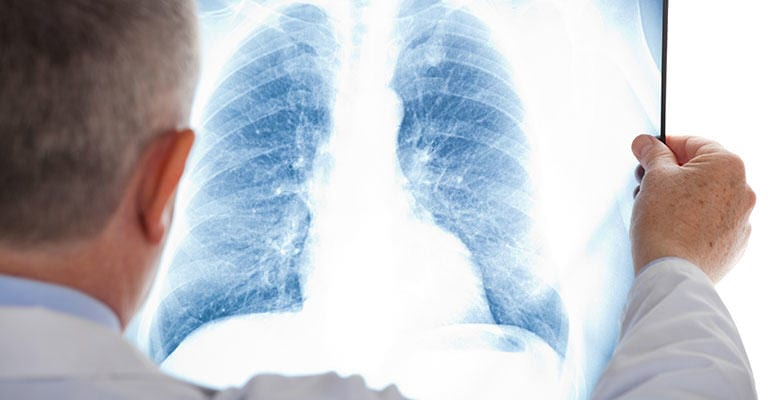 Lung Cancer and Mesothelioma Hide from Early Detection