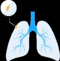 mesothelioma symptoms near death